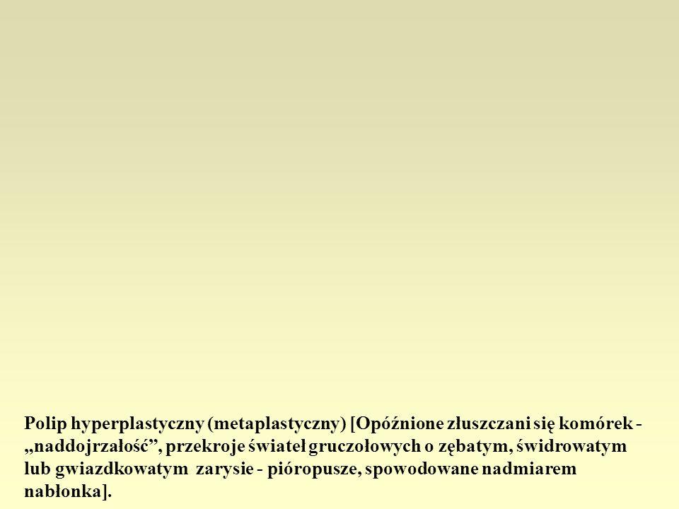 """Polip hyperplastyczny (metaplastyczny) [Opóźnione złuszczani się komórek - """"naddojrzałość , przekroje świateł gruczołowych o zębatym, świdrowatym lub gwiazdkowatym zarysie - pióropusze, spowodowane nadmiarem nabłonka]."""